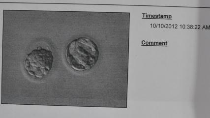 embryos 10-10-12