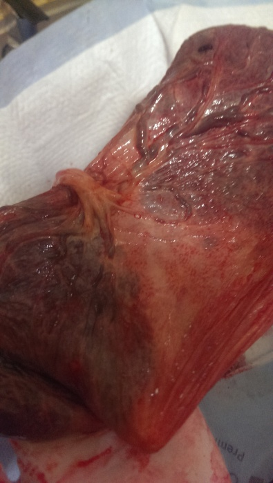 Closeup of the cord - perfect vascular structure with no vasa previa.